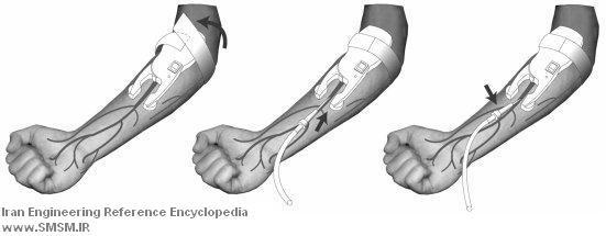 venescope-catheter